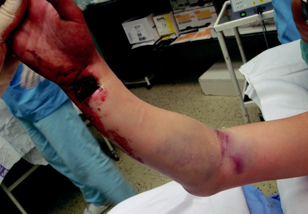 Obr. 5a. Mnohočetná otevřená etážová zlomenina pravé horní končetiny u sedmiletého dítěte
