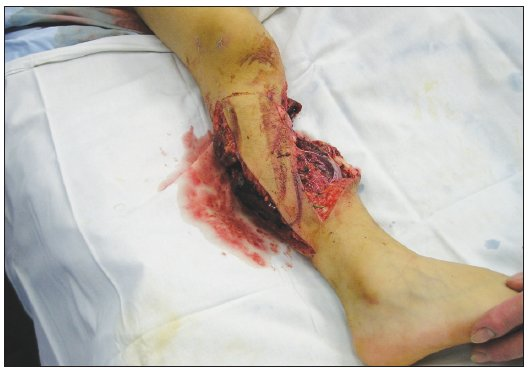 Soft tissue defects of the calf