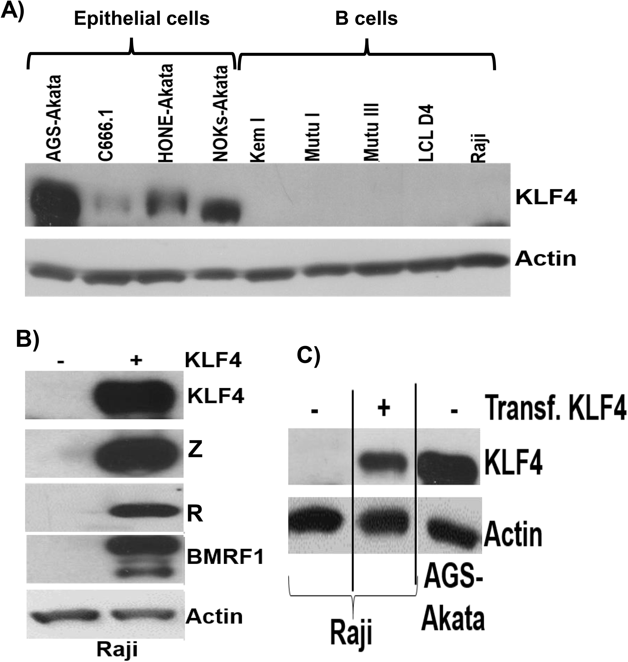 KLF4 is not expressed in B cells but can reactivate lytic EBV gene expression in this cell type.