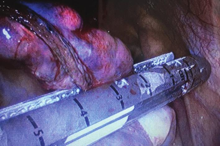Uniportal resekce apexu pravé plíce (pohled pomocí reverzní 30 stupňové optiky) Fig. 2: Uniportal resection of the right lung apex (30-degree reversed optic view)