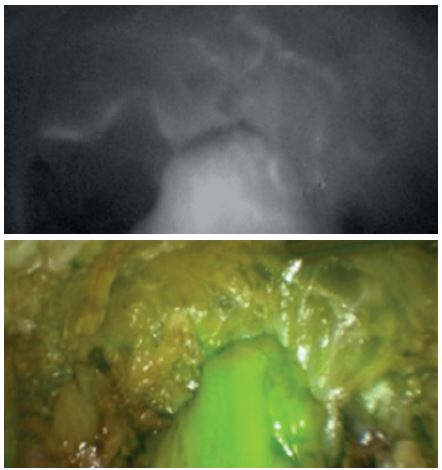 Obraz NIR fluorescentní angiografie a superponovaný obraz v normálním světle