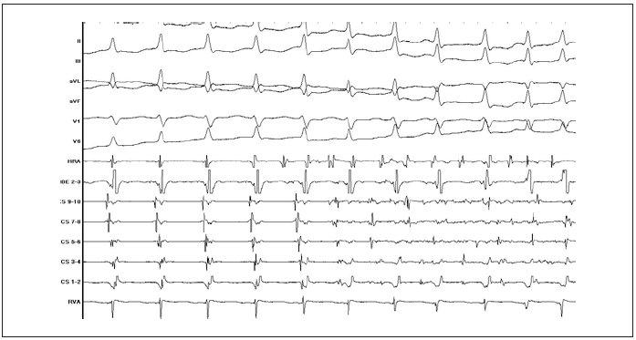 Záznam přechodu AVNRT do fibrilace síní (popis záznamu jako na obr. 3).