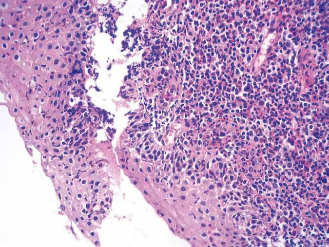 Biopsie – ezofagitida, barvení HE 400×. Fig. 2. Biopsy – esophagitis, HE staining 400×.