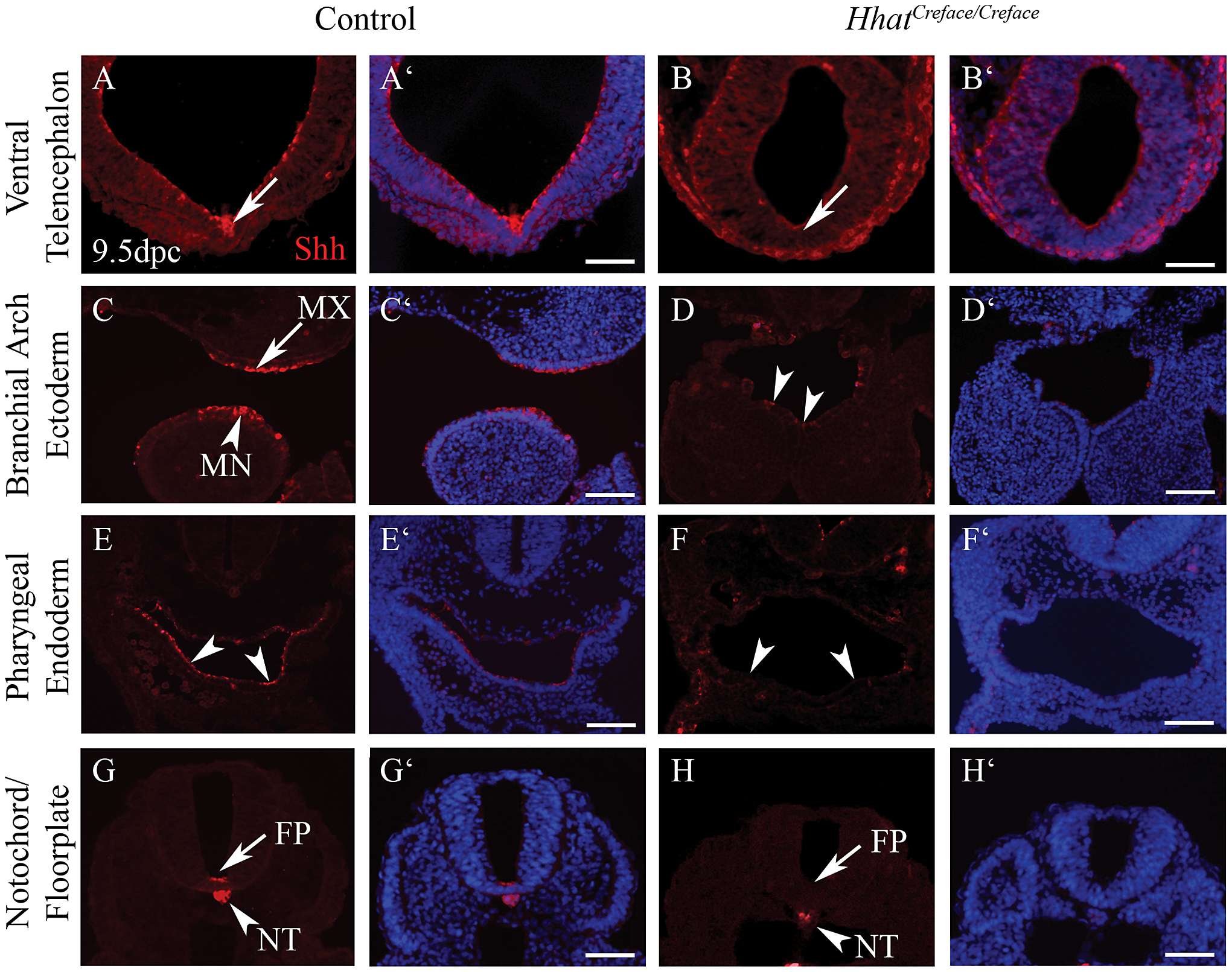 Shh activity is disrupted in <i>Hhat<sup>Creface/Creface</sup></i> embryos.