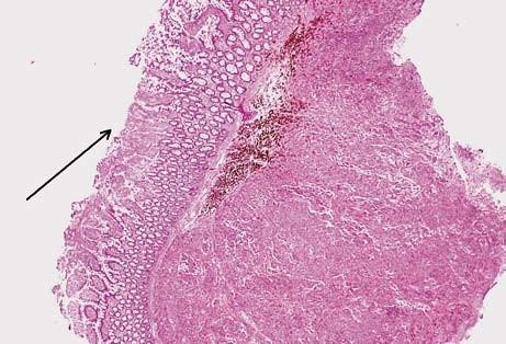 Submukózní ložisko metastázy melanomu. Na povrchu ulcerovaná sliznice tenkého střeva (šipka). Hematoxilin-eozin. Fig. 5. Submucosal melanom metastasis. Ulcerated small bowell mucosa (arrow). Hematoxilin-eosin staning.