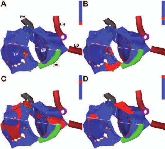 Aktivační propagační elektroanatomická mapa fokální tachykardie z blízkosti AV junkce. Pohled na obě srdeční síně přibližně z levé šikmé projekce. Na modrém pozadí trojrozměrné anatomické rekonstrukce síní se postupně šíří červeně značená depolarizační vlna z místa vzniku tachykardie poblíž AV junkce (A) centrifugálně do pravé a levé srdeční síně (B, C) a aktivace končí v oušcích obou síní (D), čili v místech vzdálených od ektopického ložiska. Následně depolarizace zcela vyhasíná až do okamžiku vzniku následujícího ektopického vzruchu.