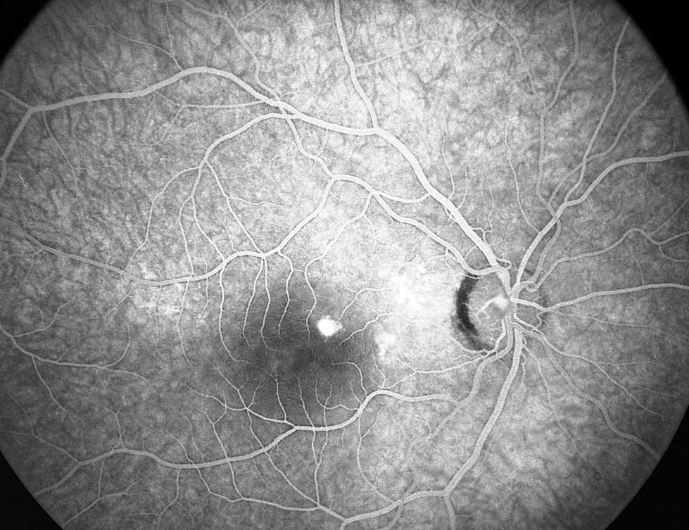 Pac. č. 4: Fluoresceínová angiografia PO: bod presakovania pri č. 1