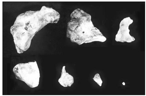 Obr. 9. Skupina bronchiolitov