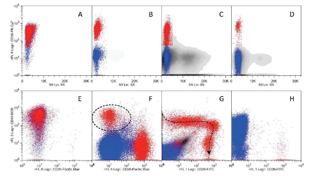 Analýza vývoje B řady v různých situacích. Červeně jsou ukázány buňky B řady (CD19<sup>poz</sup>), modře ostatní lymfoidní buňky a šedé pozadí zobrazuje všechny ostatní buňky. Zatímco při diagnóze pB ALL (A,E) tvořily CD10<sup>poz</sup> 19<sup>poz</sup> buňky naprostou většinu buněk kostní dřeně, ve dni 15 léčby (B, F) B řada tvoří již jen menšinu buněk a i v rámci ní je jen menšina maligních CD10<sup>poz</sup> 20<sup>neg</sup> buněk (v kroužku). U pacienta s infekční mononukleózou (C,G) vidíme v rámci minoritní B řady hlavní fáze vývoje (podél šipky). U pacientky s diagnózo  CD10<sup>poz</sup> T ALL (D,H) jsou kromě modře znázorněných blastů, z nichž většina je CD10<sup>poz</sup>, vidět i zbytkové fyziologické buňky B řady, které jsou však většinou zralé, protože jejich prekurzory jsou potlačeny leukémií.
