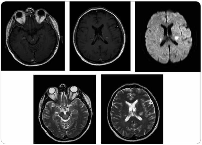 MR zobrazení mozku z 28. 5. 2009. Pokud považujeme první vyšetření (22. 1. 2009) jako vyšetření referenční před léčbou, pak se na první kontrole v průběhu léčby (28. 5. 2009) obraz nijak nemění, velikost i sycení ložisek infra i supratentoriálně je stejné.
