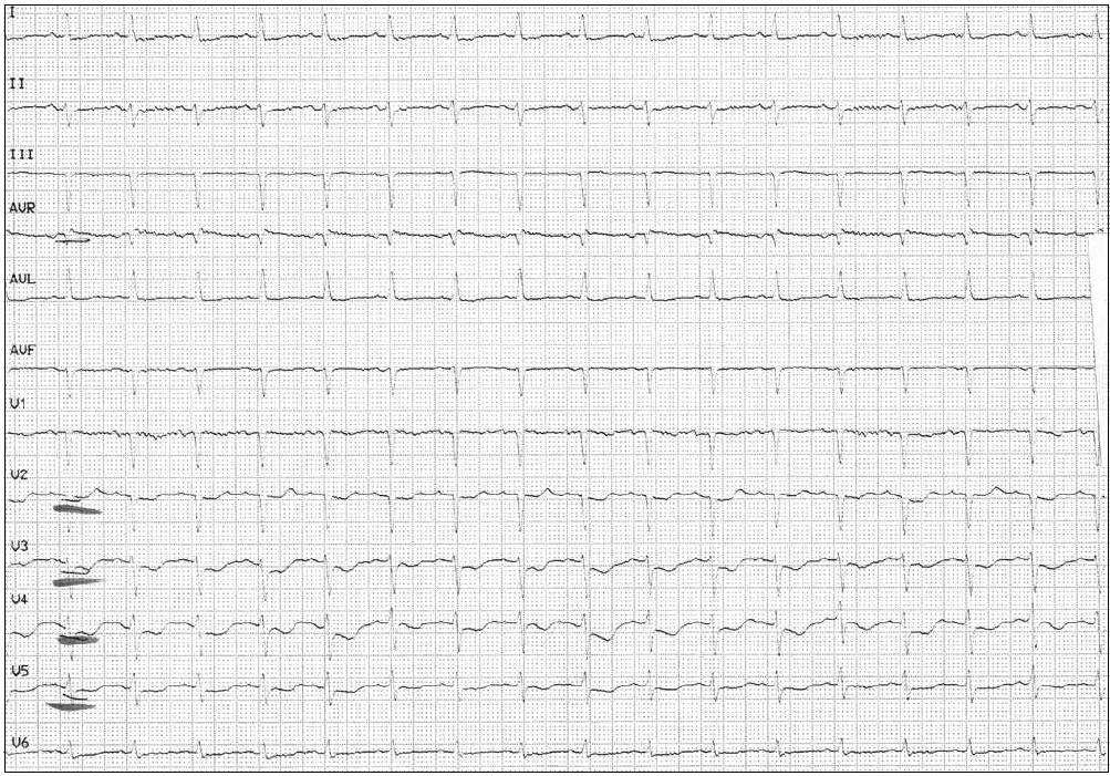 Vstupní EKG křivka. Sinusový rytmus, frekvence 102/min, převodní intervaly v normě, deprese ST do 2 mm ve V<sub>2–6</sub>, plochá vlna T ve V<sub>1</sub>,V<sub>6</sub> a III a negativní vlna T ve V<sub>3–5</sub>.