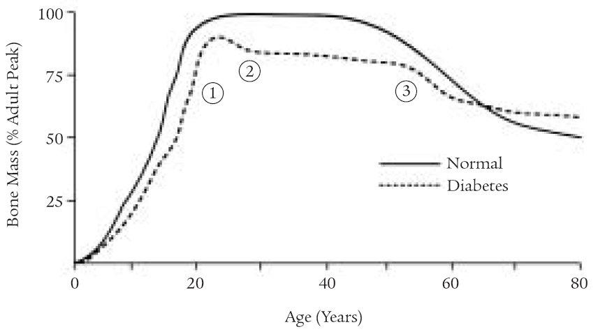 Křivka nárůstu kostní hmoty u diabetika v porovnání s fyziologickou křivkou.
