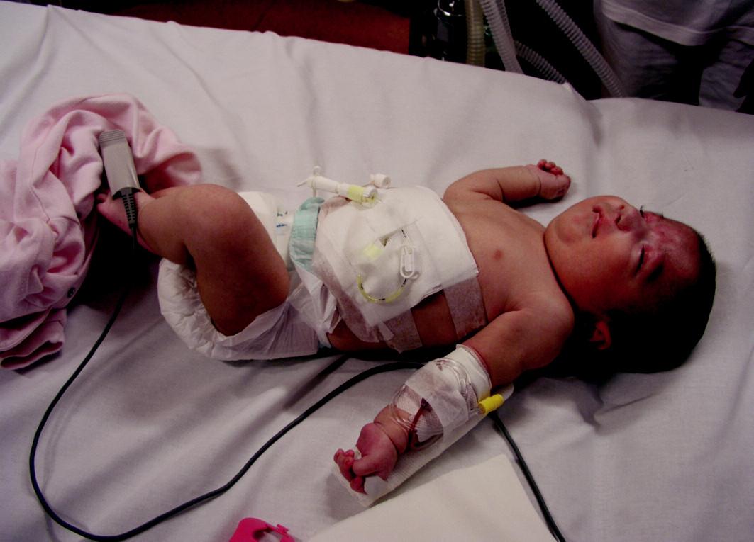 Perkutánní endoskopická gastrostomie u kojence
