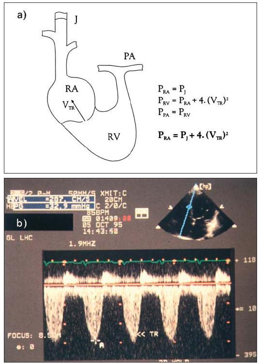 """a) Diagram ukazuje podstatu zjištění plicní hypertenze za použití kontinuálního spektrálního dopplerovského vyšetření. Tlak v pravé síni je určen inspekcí jugulárního žilního pulzu. Je-li přítomna trikuspidální regurgitace, dovoluje Bernoulliho rovnice (Δ P = 4 × V<sup>2</sup>) vypočítat tlakový gradient RV – RA (tj. PK–PS) z rychlosti """"jetu"""". Systolický tlak v pravé komoře se rovná tlaku v plicních arteriích, pokud není obstrukce výtoku z pravé komory. b) Kontinuální spektrální dopplerovské vyšetření u trikuspidální regurgitace. Vrcholová rychlost je 2,8 m/s a odpovídá tlakovému gradientu 31 mmHg. Tlak v arteria pulmonalis se rovná tlaku v pravé síni + 31 mm Hg."""