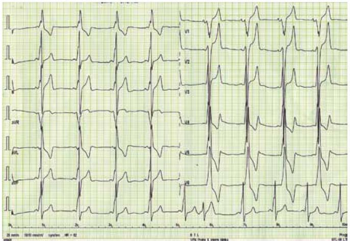 Elektrokardiogram nemocného s Danonovou chorobou – obraz preexcitace se zkrácením PQ intervalu a přítomností delta vlny společně s voltážovými kritérii hypertrofie levé komory a doprovodnými repolarizačními změnami.