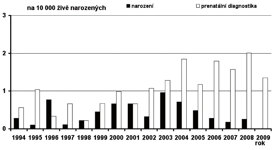 Prevalence Patauova syndromu v České republice v období 1994–2009, prenatálně a postnatálně diagnostikované případy Fig. 17. Prevalence of Patau syndrome in the Czech Republic in 1994–2009, prenatally and postnatally diagnosed cases