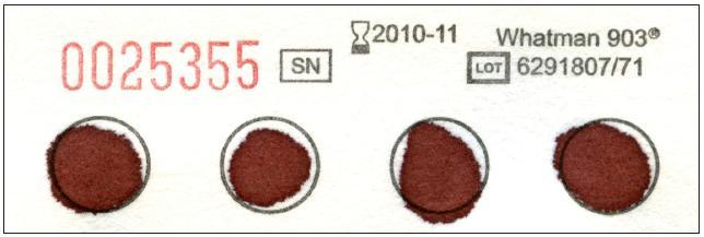 """Krevní papírek. Po užívá se pro novorozenecký skríning, ale také pro jakákoliv další vyšetření dědičných metabolických poruch v suché krevní kapce. Je možné po užít kapilární i venózní krev, po důkladném prosáknutí je nutné nechat krevní kapku dobře zaschno ut při pokojové teplotě. Krevní papírky je možno objednat na adrese: Mar-Con, s. r. o., laboratorní technika, Geologická 995/ 9, 152 00 Praha 5-Barrandov, tel.: 251 815 250, e-mail: <a href=""""mailto://info@mar-con.cz"""">info@mar-con.cz</a>."""