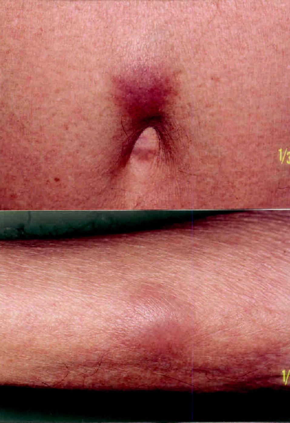 Nález podkožných uzlov pri pupku a na zadnej strane pravého predlaktia v januári 2007 pred zahájením chemoterapie.