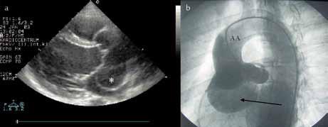 a) Echokardiografické vyšetření u obrovského aneuryzmatu Valsalvova sinu vedoucí k poruše koaptace aortálních cípů. b) Aortografie obrovského aneuryzmatu Valsalvova sinu.