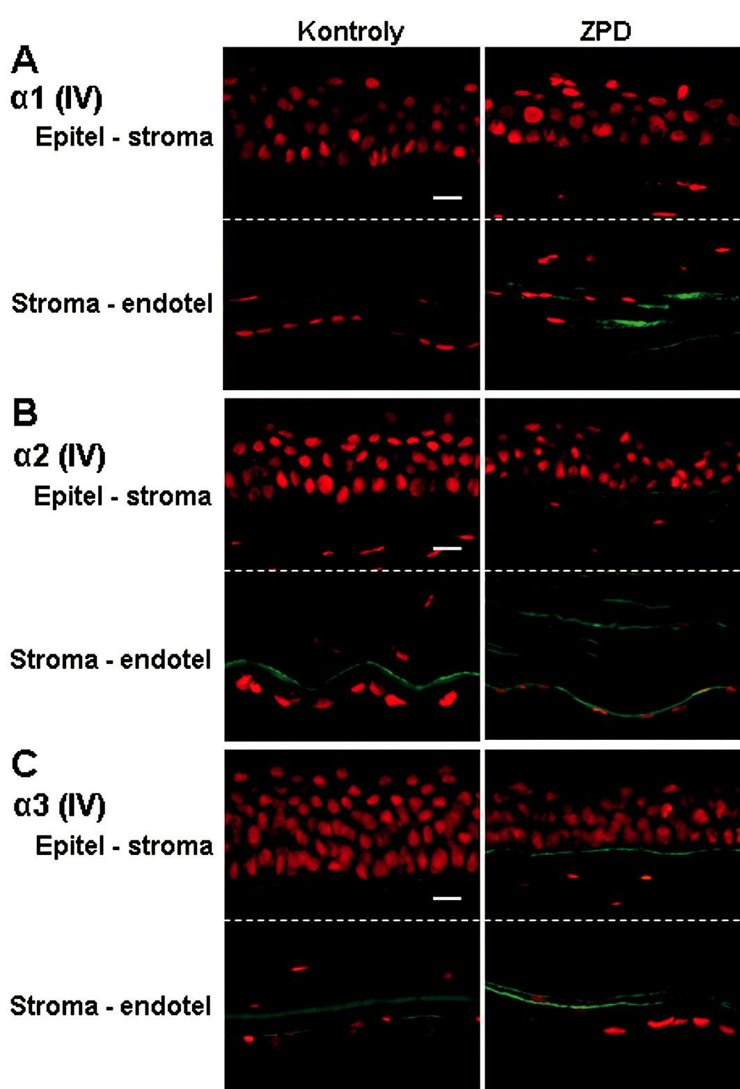 Výskyt reťazcov α1, α2 a α3 kolagénu IV v rohovkách kontrol a pacientov so ZPD. Popis: Reťazec α1 (A) bol detekovaný len v zadnej strome a na endotelovej strane Descemetovej membrány u pacientov so ZPD. Reťazec α2 (B) bol u pacientov so ZPD prítomný v bazálnej membráne epitelu, v zadnej časti stromy a na endotelovej strane Descemetovej membrány. Výskyt reťazca α3 (C) sa príliš nelíšil medzi kontrolnou a patologickou rohovkou (pozitivita v bazálnej membráne epitelu, na endotelovej strane Descemetovej membrány; u pacienta so ZPD zdvojená línia). Signál pre všetky reťazce α je zelený (FITC – Fluorescein isothiocyanate) a jadrá sú zviditeľnené propidium jodidom (PI). Mierka znázorňuje 10 μm