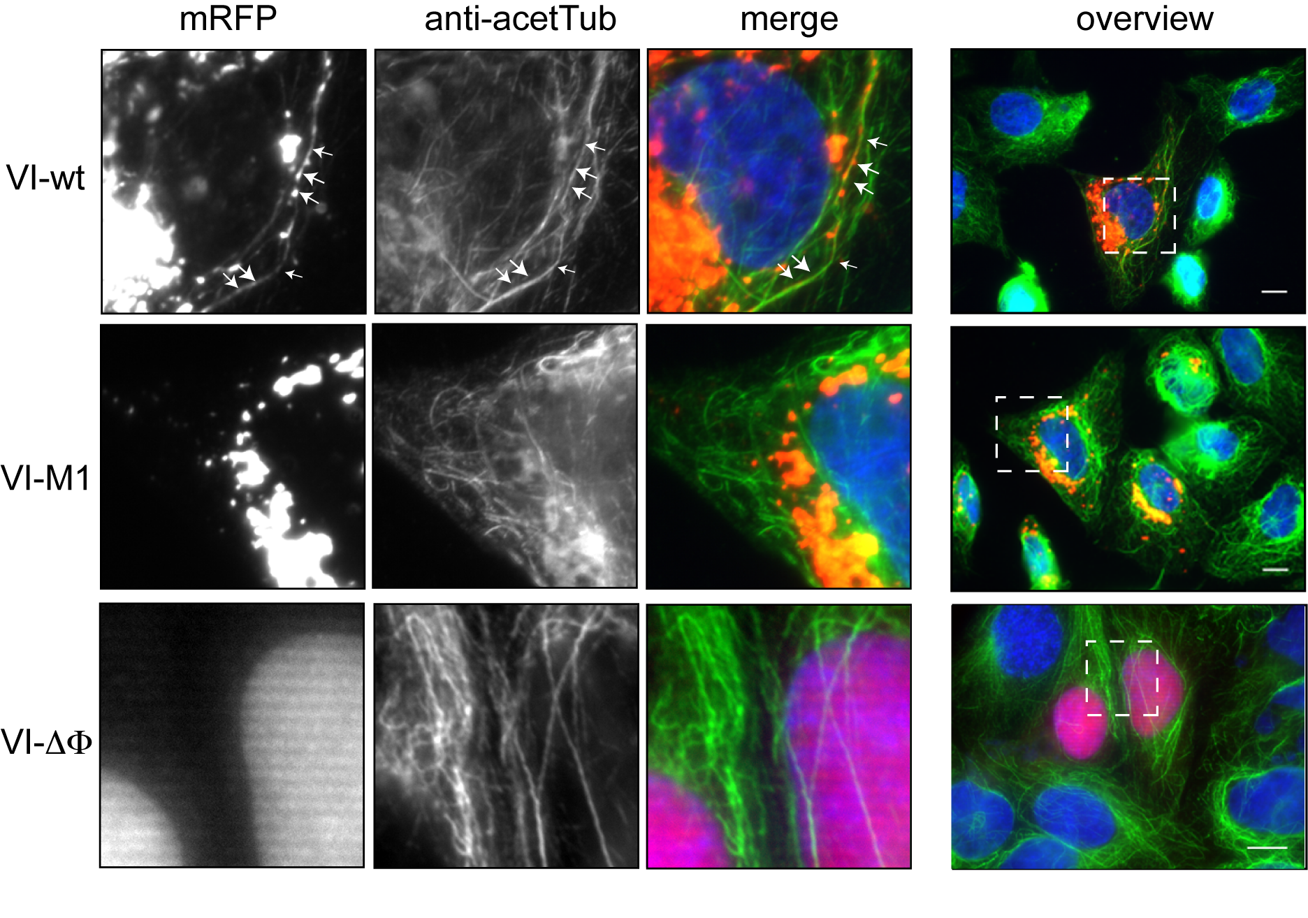 Subcellular localization of protein VI.