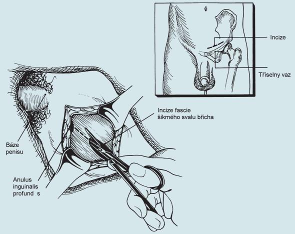 Orchidektomie.