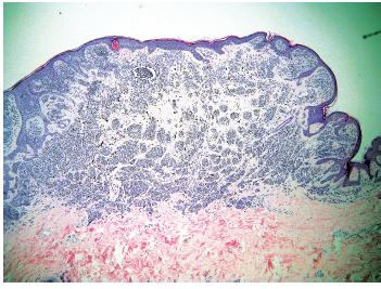 Obr. 6c. V centru intradermálního névu je oblast s pigmentovanými melanocyty částečně uspořádanými do ostře ohraničených hnízd