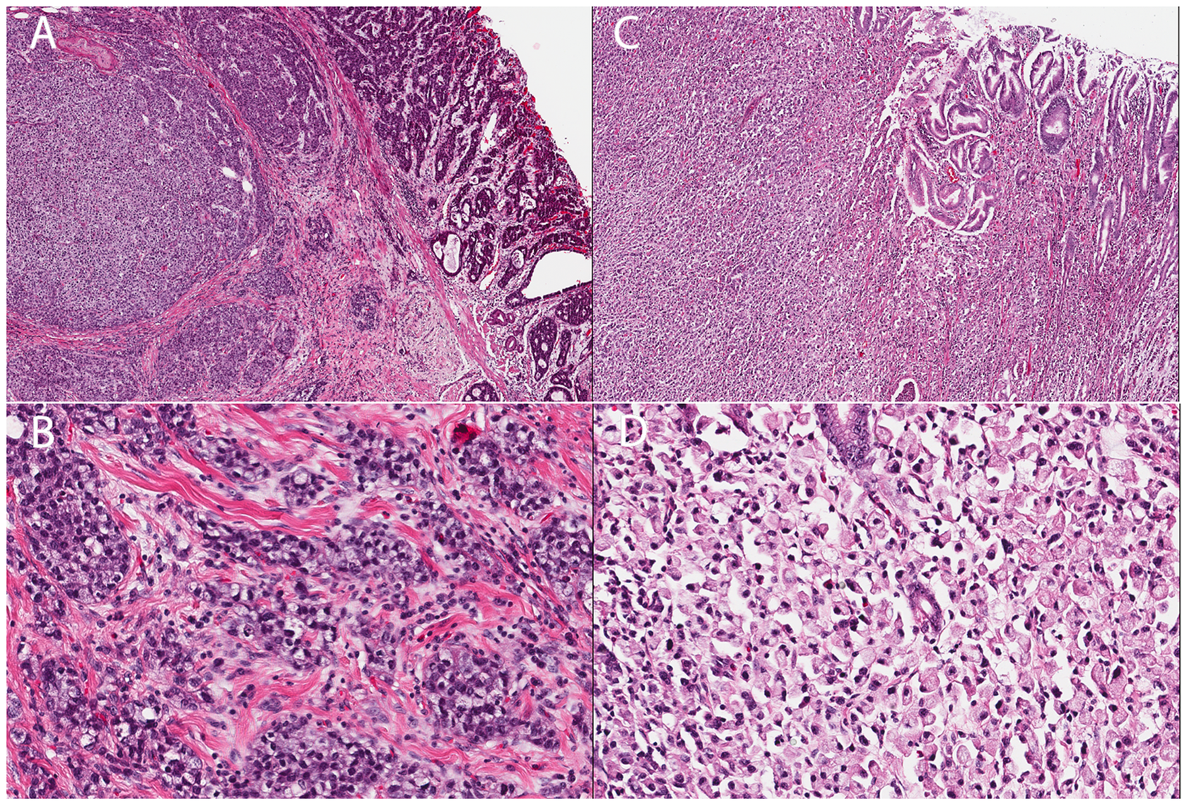 Histology of two gastric cancer patients from the Maritime Canadian family.