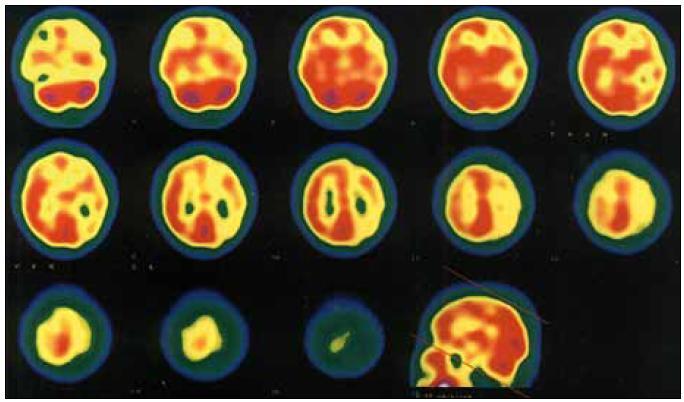Obr. 2a. SPECT – transverzální řez. Při záchvatu migrény s prolongovanou aurou je patrna hypoperfuze postihující především korovou oblast téměř celé levé hemisféry. Vyšetření bylo provedeno 1,5 hodiny po začátku záchvatu.