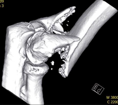 CT vyšetření - 3D rekonstrukce zlomeniny distálního humeru v bočné projekci