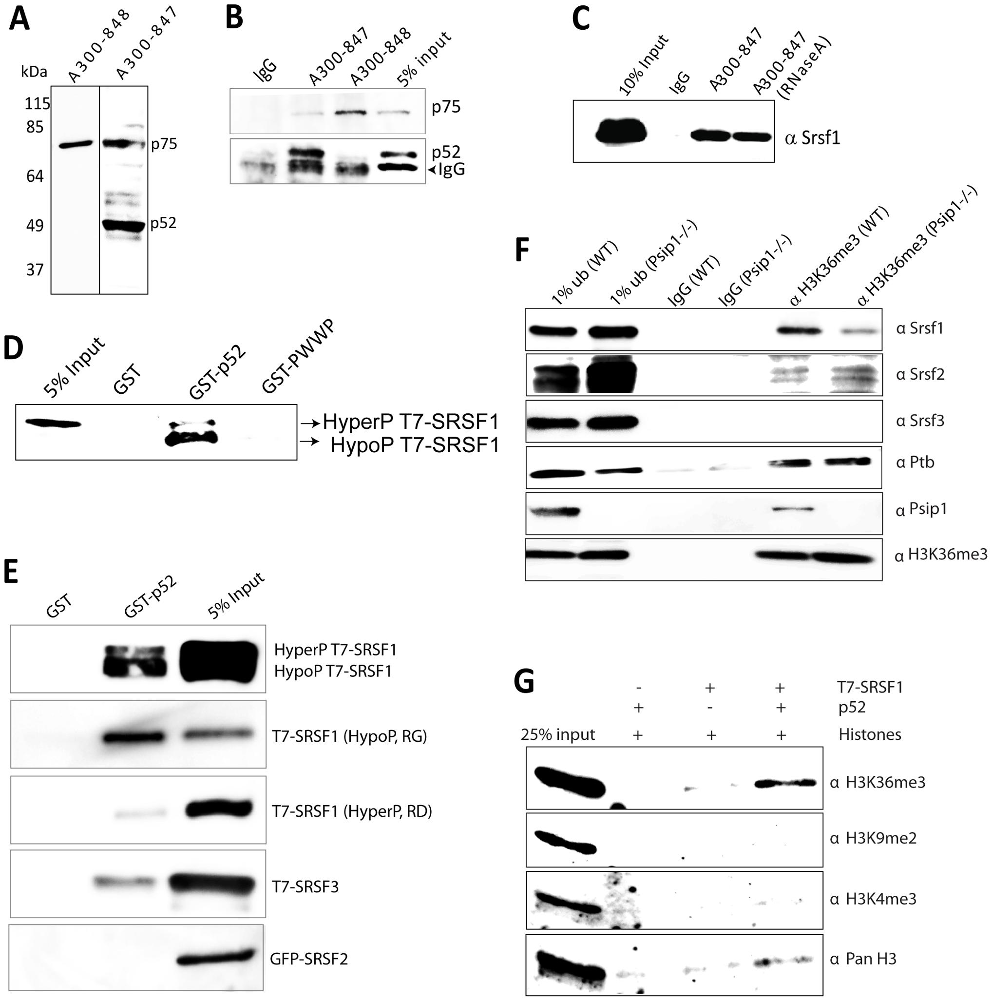 Immunoprecipitation of Psip1/p52 and p75.