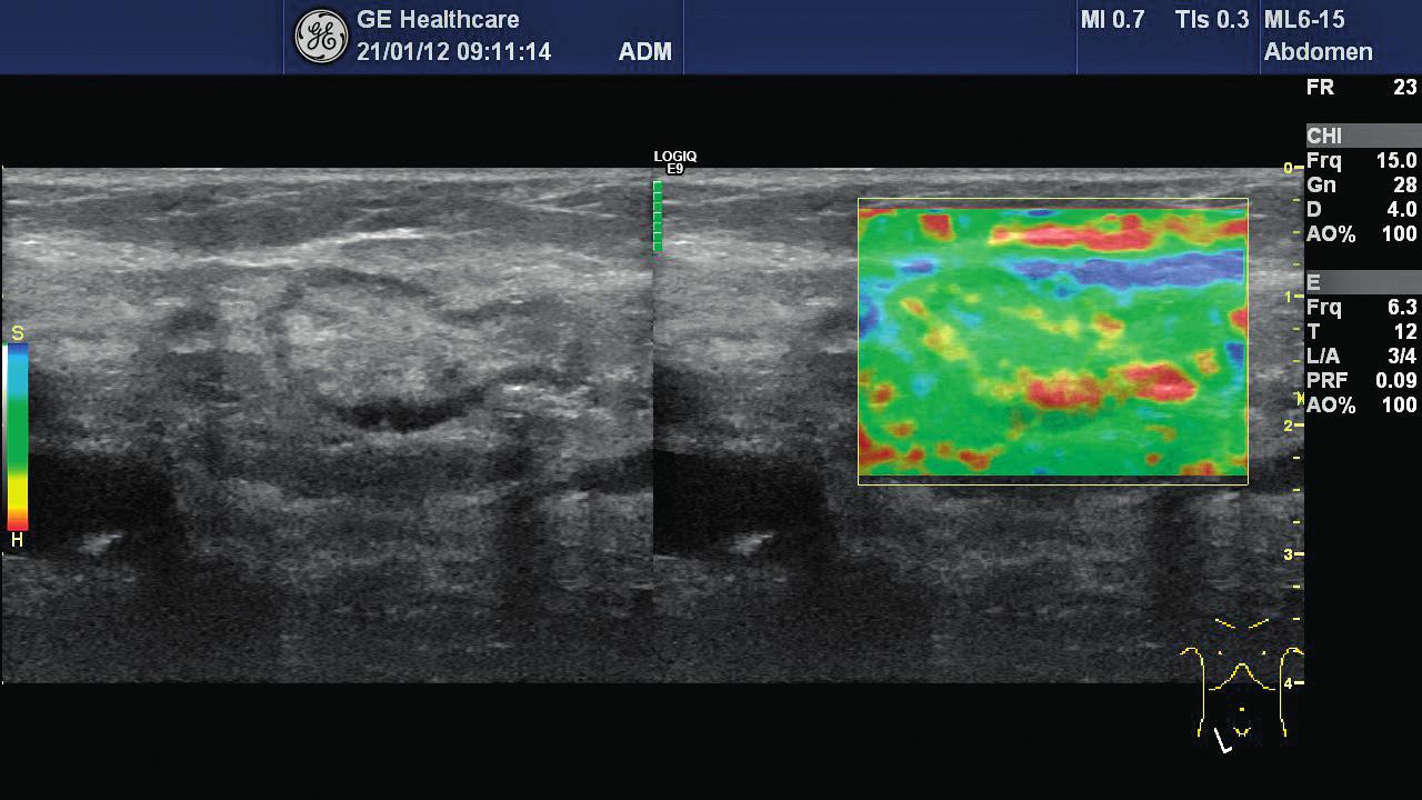 Obr. 3 Strain elastografie – obraz benigní intraabdominální uzliny u 78letého pacienta, je patrný minimální výskyt tuhých okrsků (převaha zelené barvy, minimum červené, elastografické skóre 1–2)