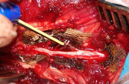 Peroperační foto – stimulace míšního kořene háčkovou elektrodou Fig. 3. Intraoperative photo – ventral spinal root stimulation by hook electrode