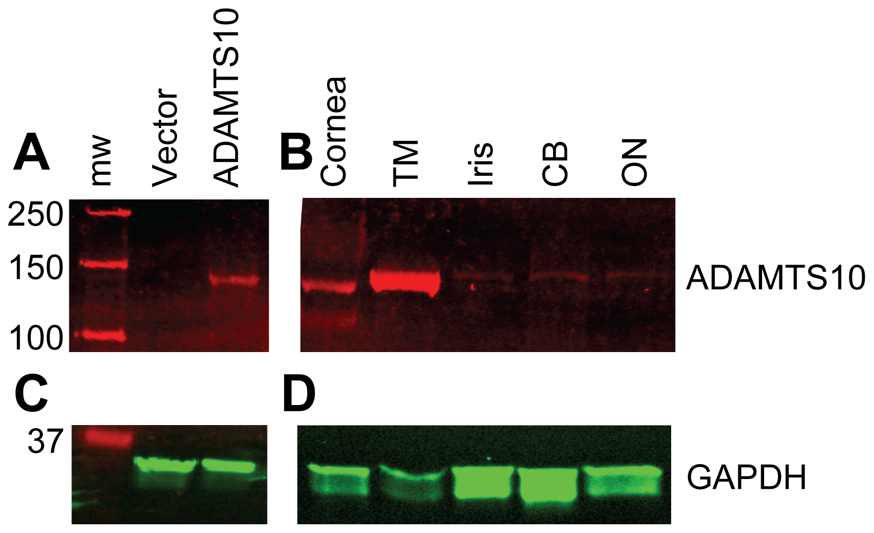 ADAMTS10 protein is highly expressed in the trabecular meshwork.
