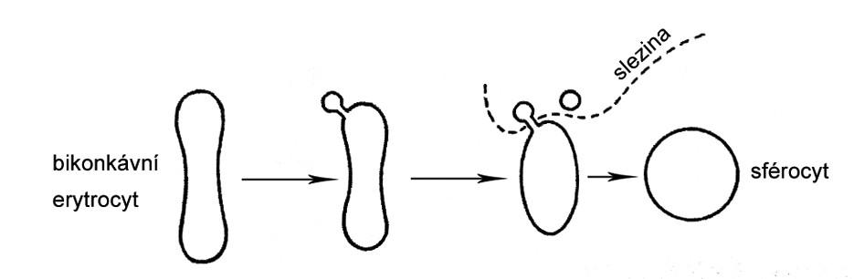 Schéma vzniku sférocytu.