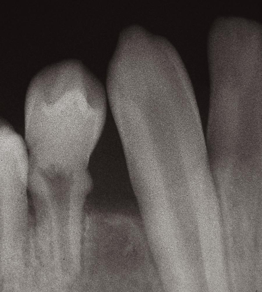 Intraorální rentgenový snímek, zub 44 s anomálním tvarem klinické korunky, hypoplastickými změnami v krčkové krajině a krátkým radixem