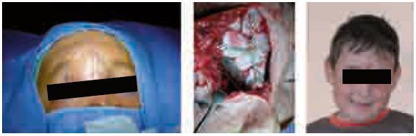 Plánovanie rekonštrukcie tesne pred operáciou. Prítomnosť jazvy po primárnom ošetrení indikovala prístup, ktorý vytvoril dostatočný priestor na manipuláciu. V strede zachytená rekonštrukcia s použitím priľahlých kostí zafixovaných titanovými mikrodlahami a mikroskrutkami. Nakoniec úsmev pacienta pred prázdninami mesiac po operácii.