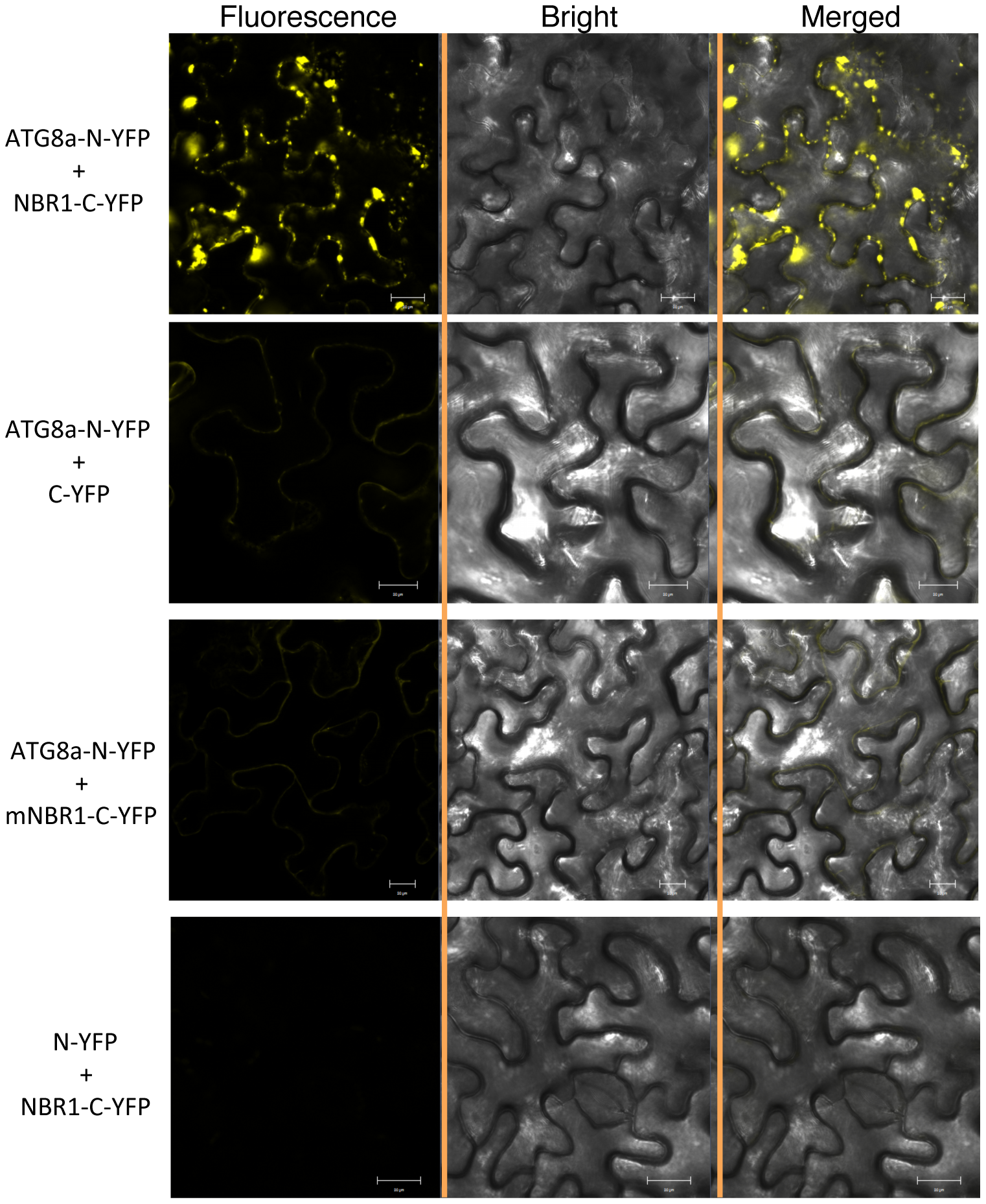 BiFC analysis of NBR1 interaction with ATG8a in planta.
