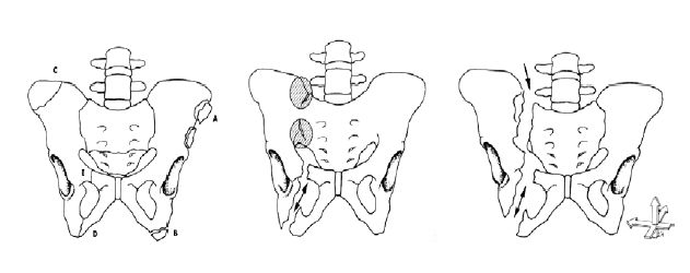 Fraktury pánve: dělení dle AO – typ A, B a C Fig. 1. Pelvic fractures: division by AO – type A, B, C