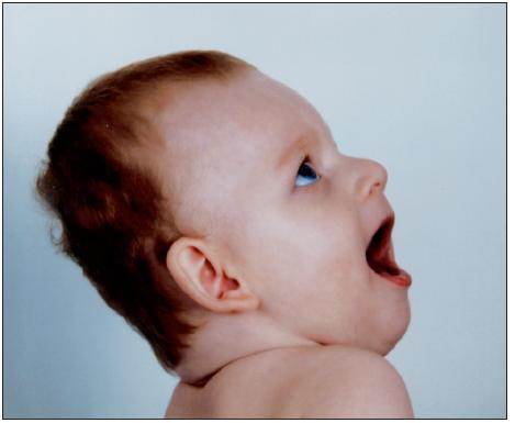 Typický fenotyp dítěte s Angelmanovým syndromem (publikováno se svolením rodičů dítěte, fotoarchiv OLG Ostrava)