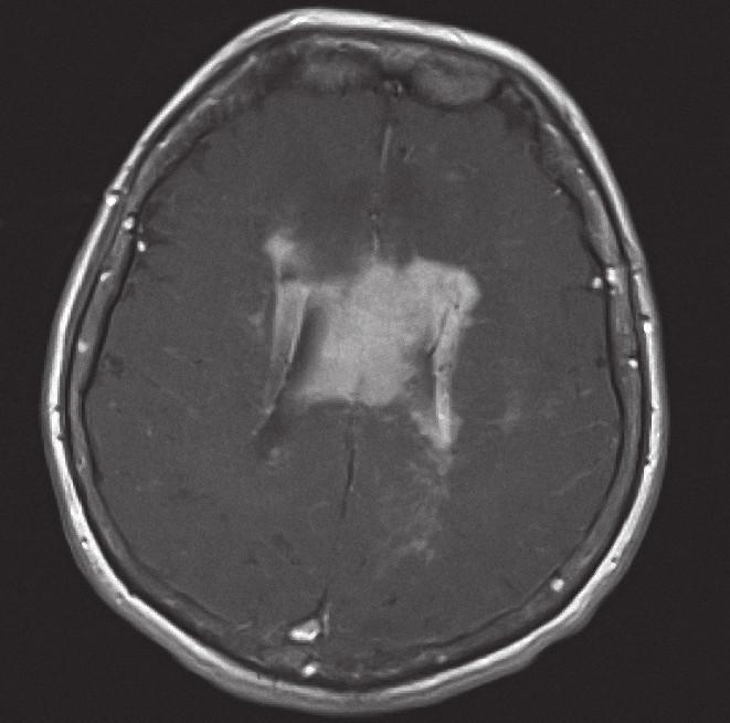 Magnetická rezonance, SE MTC T1 s kontrastní látkou i.v. Pacientka K. A. 1941, transverzální řez, kontrastně se sytící infiltrát lymfomu v corpus callosum a periventrikulárně, hyposignální vazogenní edém v okolí.