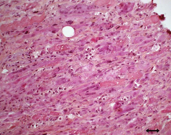 Obraz nekrotizující myopatie s četnými regenerujícími vlákny (hematoxylin-eozin).