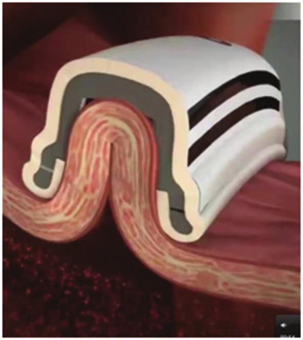 Průřez ablačním katétrem; myokard síně je nasán podtlakem do nitra sondy, mezi ablační elektrody Fig. 2: Cross-section of the catheter; the atrial wall is sucked into the catheter, between the ablation electrodes