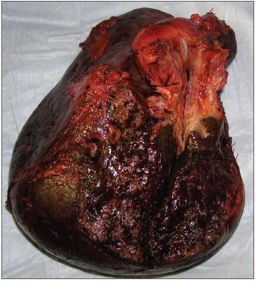 Resekát po pravostranné rozšířené hepatektomii s lobus caudatus pro Klatskinův tumor typu Bismuth IIIA Fig. 9: Right extended hepatectomy with lobus caudatus for Klatskin tumor type Bismuth IIIA