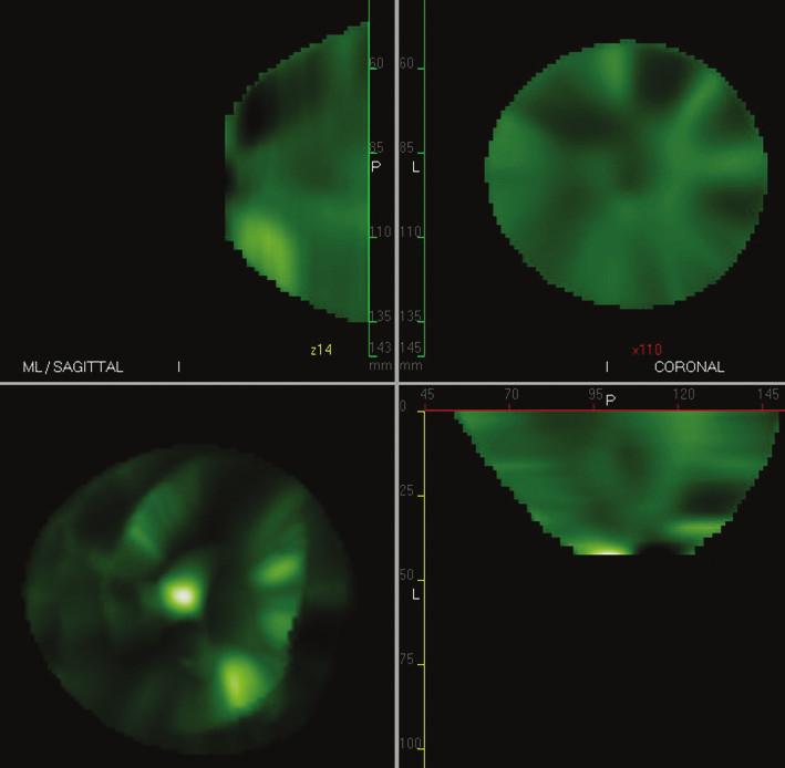 CTLM skeny – tři základní roviny v 2D zobrazení a vlevo dole 3D zobrazení, normální nález při CTLM vyšetření