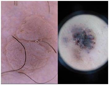Verruca vulgaris Vlevo na kůži trupu, vpravo na plosce.