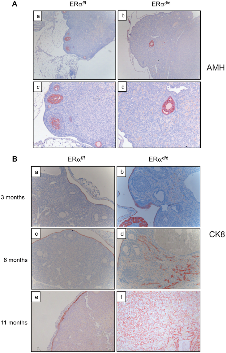Development of ovarian tumors in ERα<sup>d/d</sup> mice.