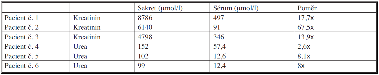 Srovnání hladin kreatininu a urey u pacientů s nejvyššími hladinami kreatininu a urey v sekretu Tab. 5. Comparation of the creatinine a urea levels in patients with the highest creatinine and urea levels in the secretion