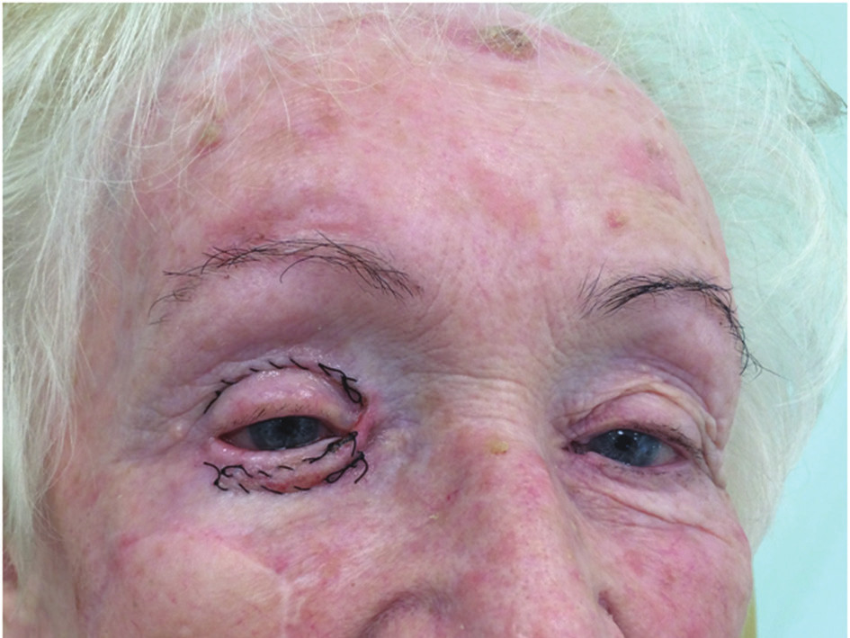 c) před odstraněním sutury po 7 dnech od zákroku