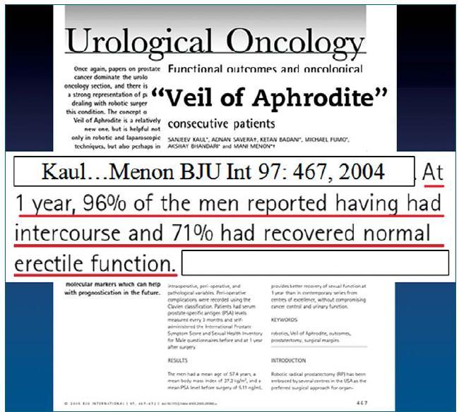 Citace publikace informující o výborných výsledcích dosahování erekce po roboticky asistované radikální prostatektomii.